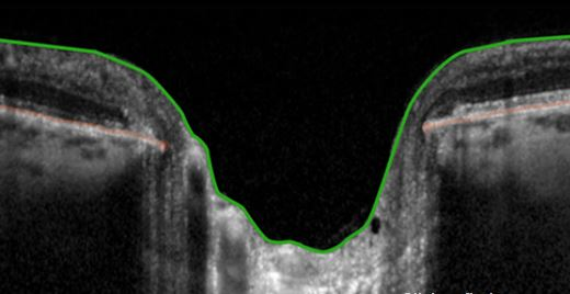 Glaucoma analisi nervo ottico Heidelberg