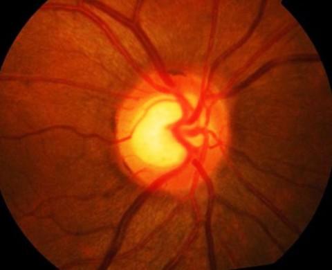 Glaucoma Nervo ottico