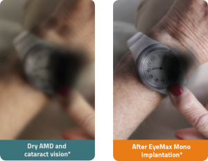 dtc about eyemax compare