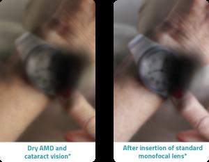 dtc about improve symptoms